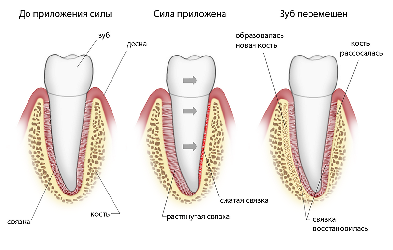 Почему ломит зубы передние нижние